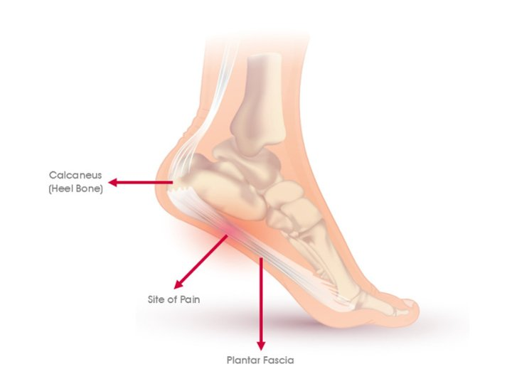 Plantar Fasciitis – All You Need to Know