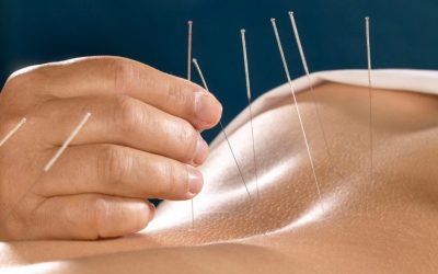 Treating Pain with Acupuncture in Bangkok