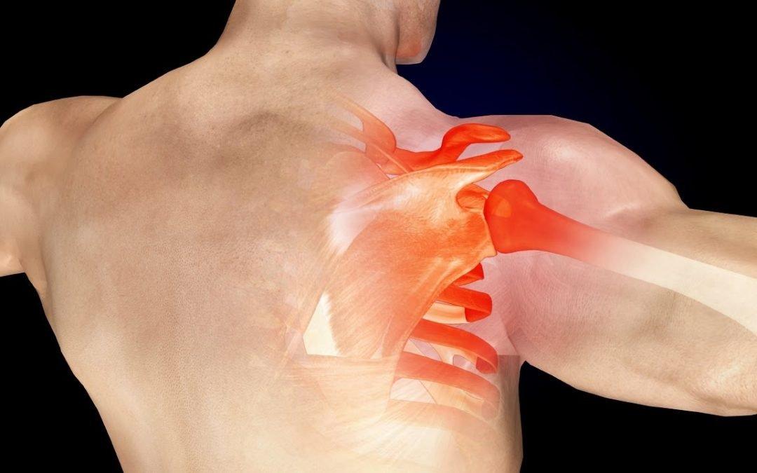 รักษาอาการปวดบ่า นวดกล้ามเนื้อชั้นลึก กรุงเทพ