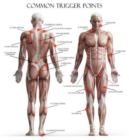 blog-acupuncture-for-fibromyalgia-6