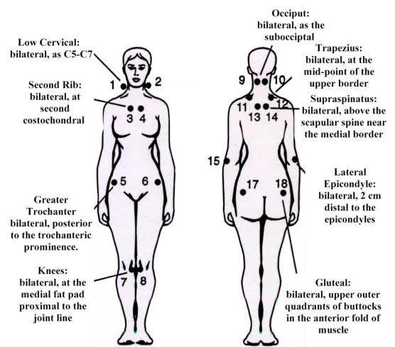 blog-acupuncture-for-fibromyalgia-7