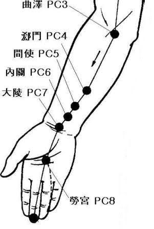 blog acupuncture for carpal tunnel syndrome 5