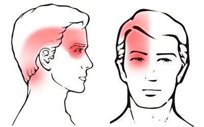 อาการปวดศรีษะจากความผิดปกติของคอ (Cervicogenic headache)