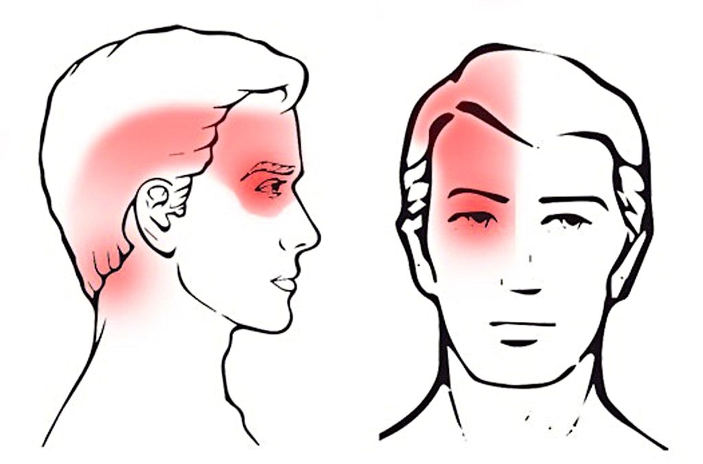 Cervicogenic Headaches: All You Need to Know